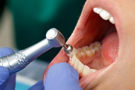 diente1